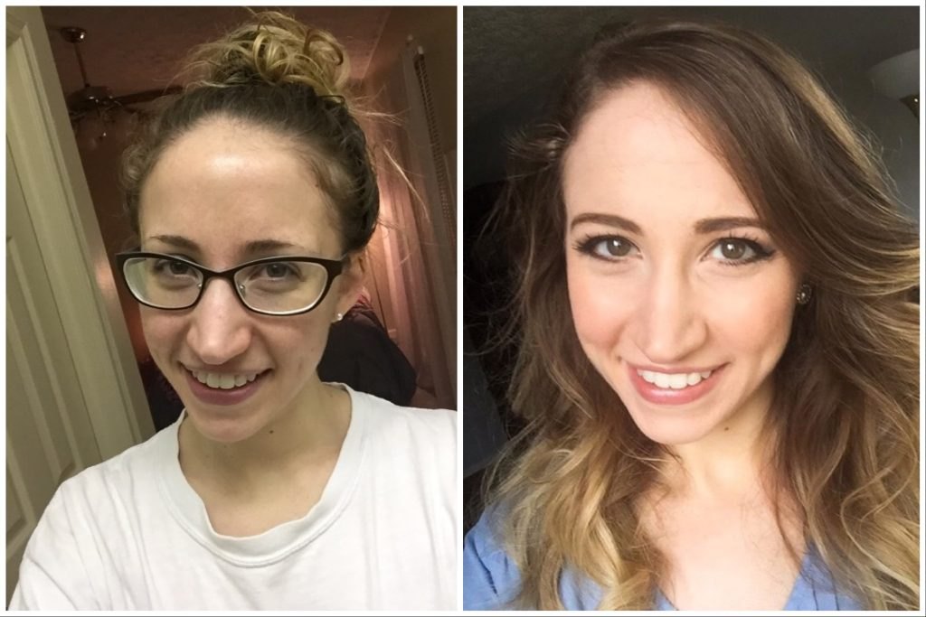 How I cleared my acne when nothing else worked by making diet and lifestyle changes. I sought out natural methods to clear my acne.